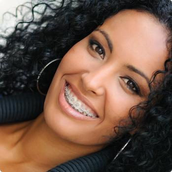 Sapphire Dental ceramic braces fairfax va