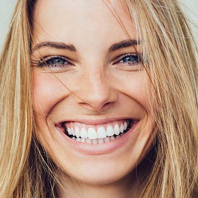 Dental veneers fairfax va