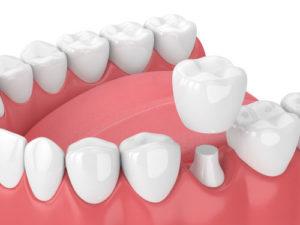 dental crown fairfax va