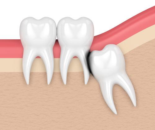 teeth extraction fairfax va