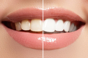 teeth whitening fairfax va