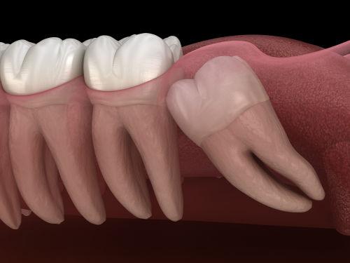 wisdom teeth fairfax Va