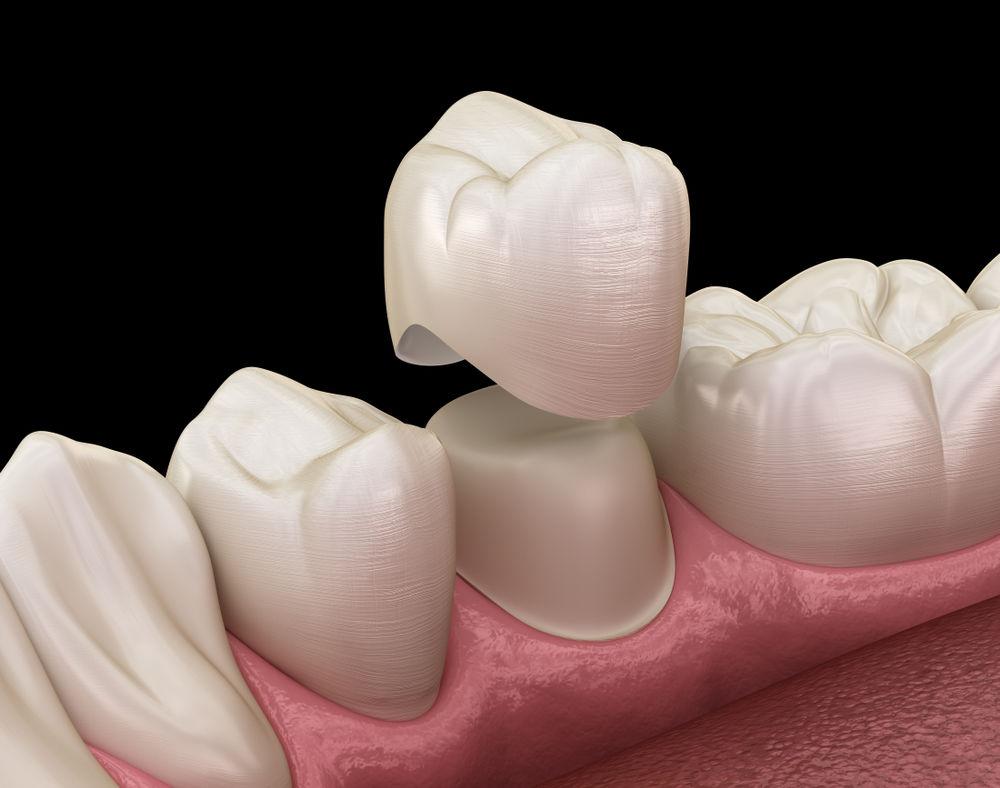 dental crowns fairfax va