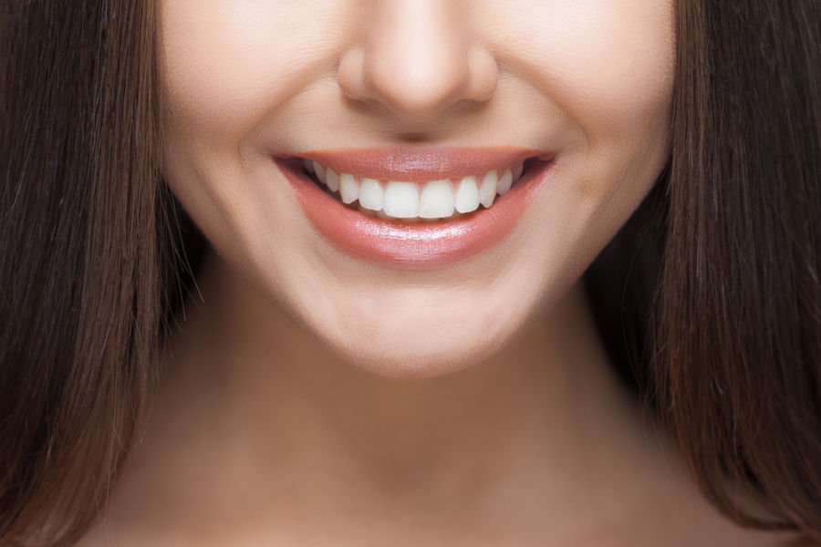 young woman smiling teeth whitening fairfax va
